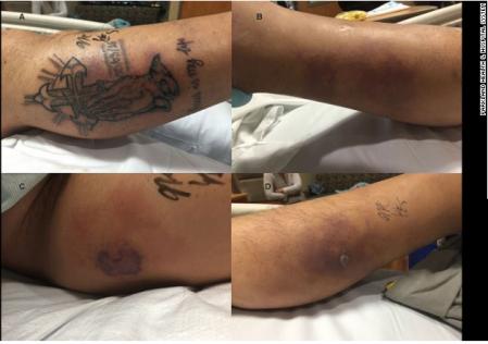 homem de 31 anos pegou bacteria e morreu apos tatuar